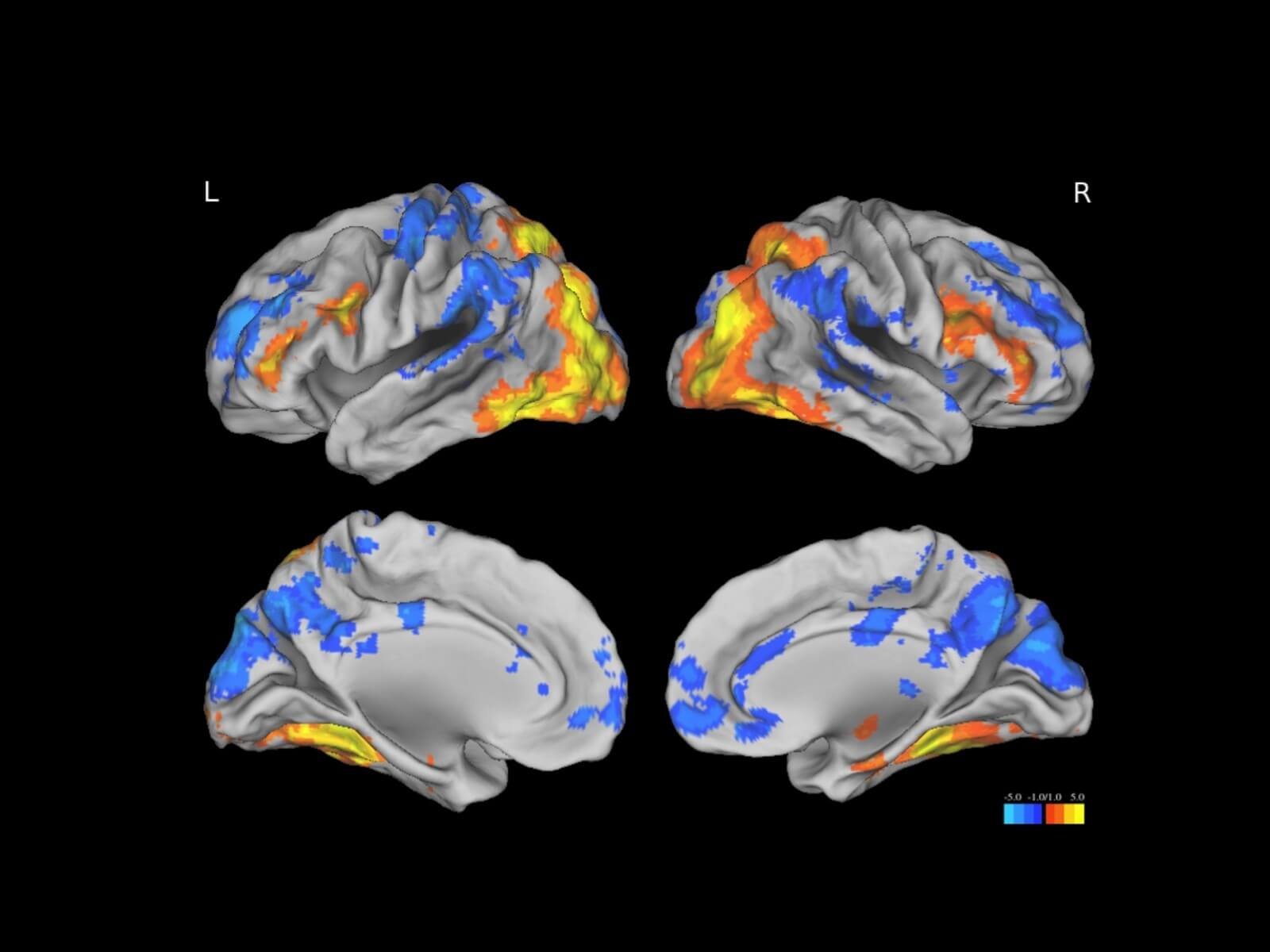 Jagust Lab, map of brain regions activated during successful memory encoding.