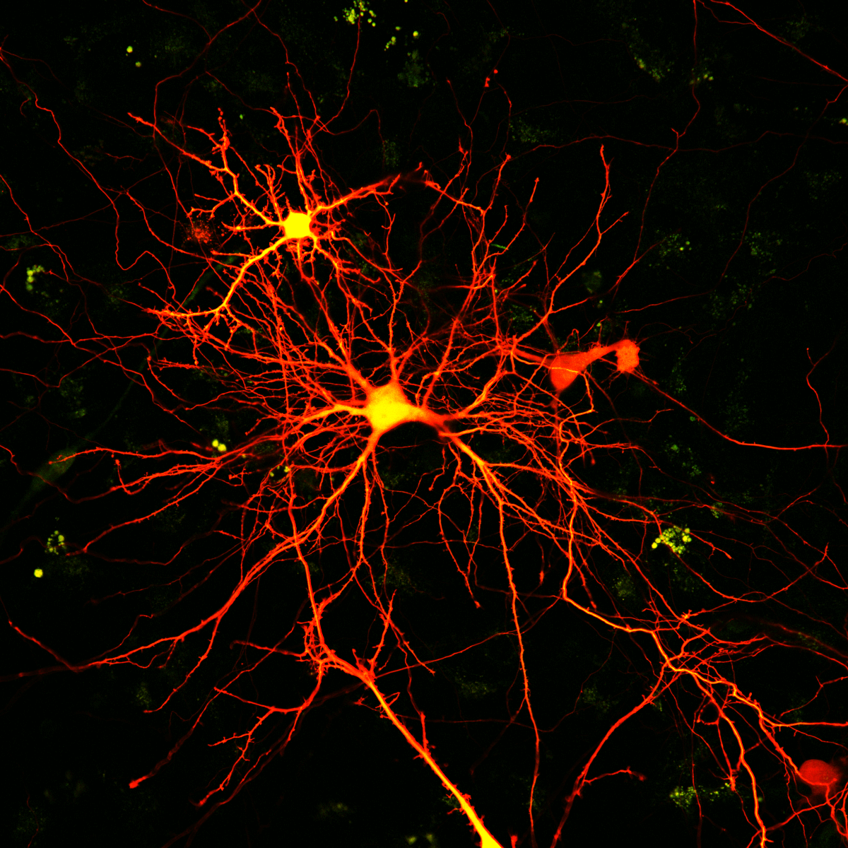 Hippocampal neurons, by Shai Berlin, Isacoff Lab. Taken on Zeiss LSM 780 at the Molecular Imaging Center.